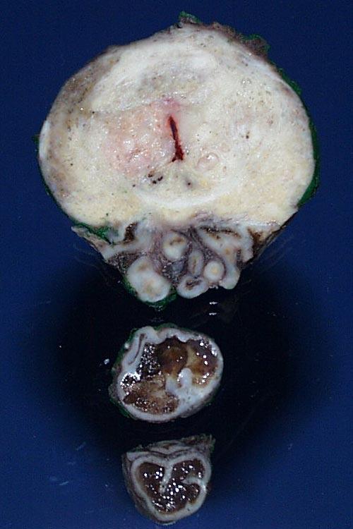 erectie na prostatectomie